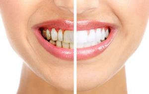 Профессиональная гигиена полости рта в стоматологии