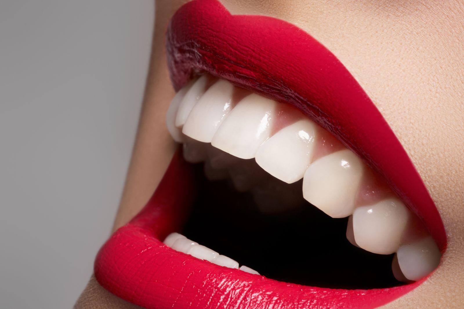 Как отбелить зубы и сколько это стоит